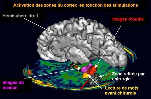 69e237e6a3797d ... le neuropsychologue Stanislas Dehaene dans la vidéo cerveau lecture «